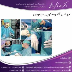 آندوسکوپی سینوس دکتر احمد ناظم بافقی