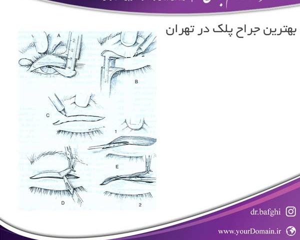 بهترین جراح پلک در تهران