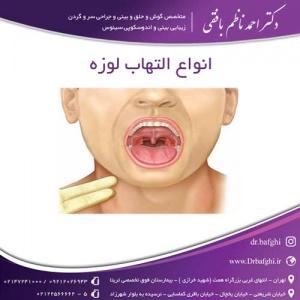 انواع التهاب لوزه