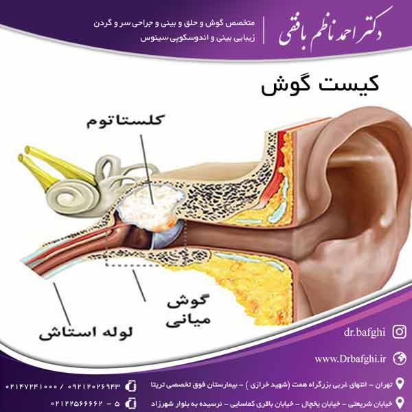کیست گوش دکتر احمد ناظم بافقی