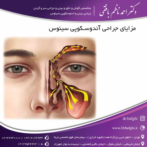 مزایای جراحی آندوسکوپی سینوس دکتر احمد ناظم بافقی